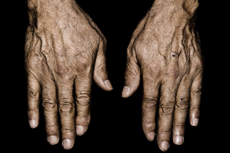 The wrinkled hands of an elderly person.