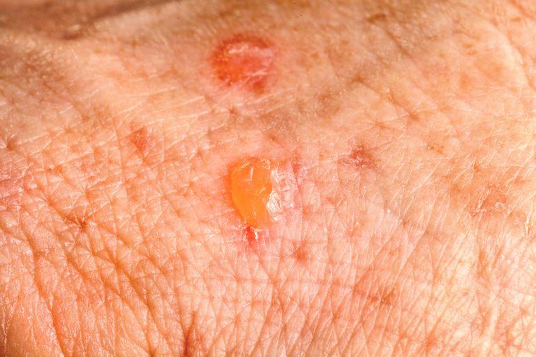Actinic Keratosis skin cancer