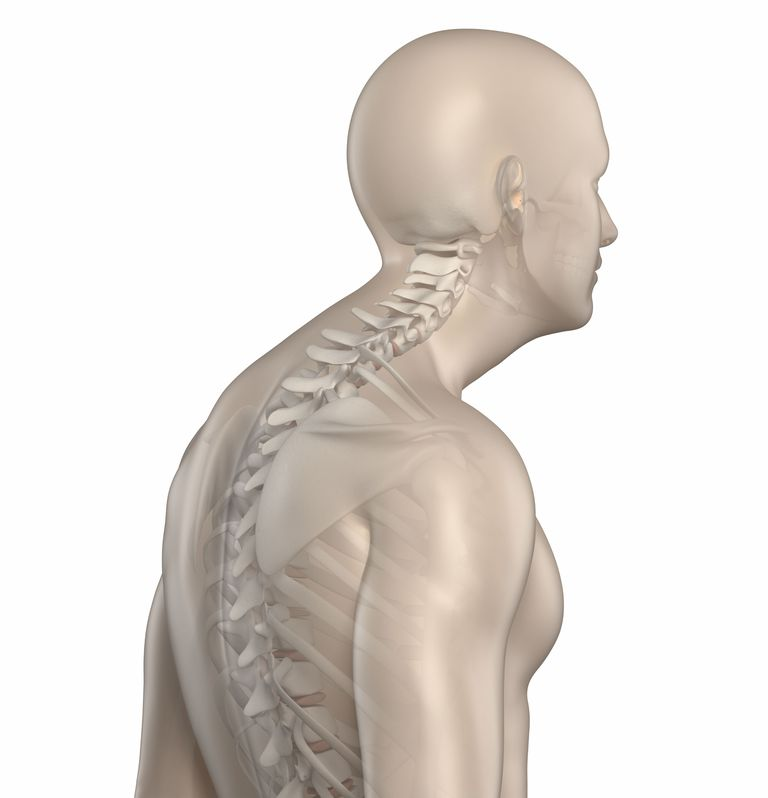 Depiction of excessive kyphosis and forward head posture.