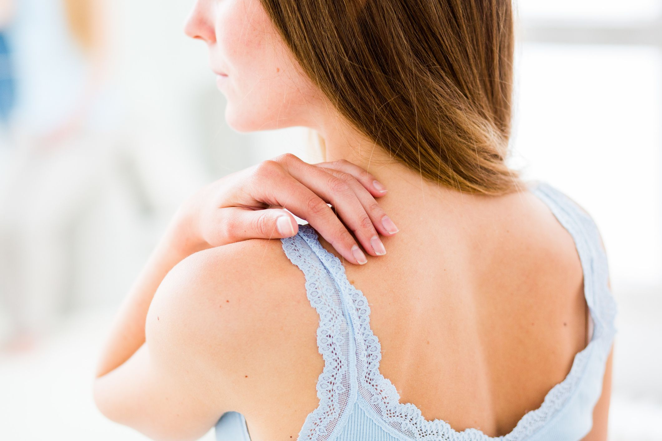 Managing Skin Problems From Radiation Therapy