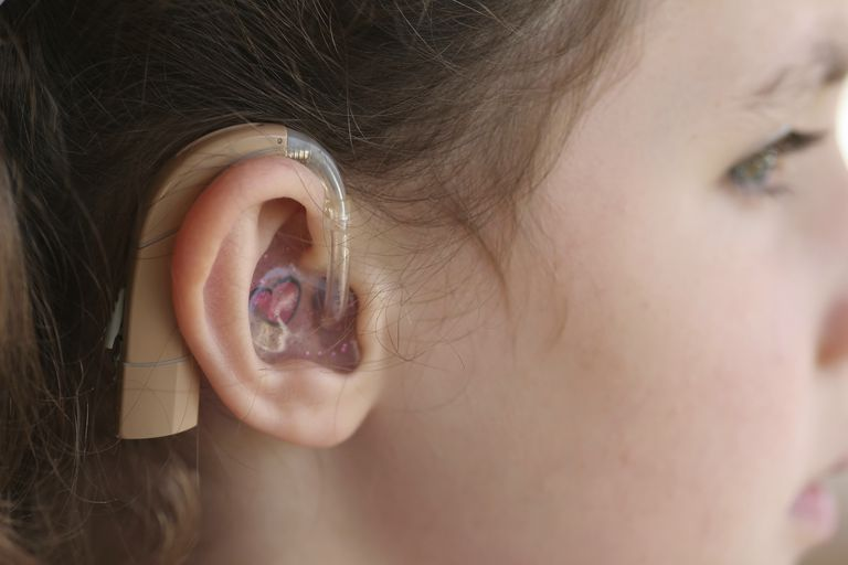 Young girl with hearing loss