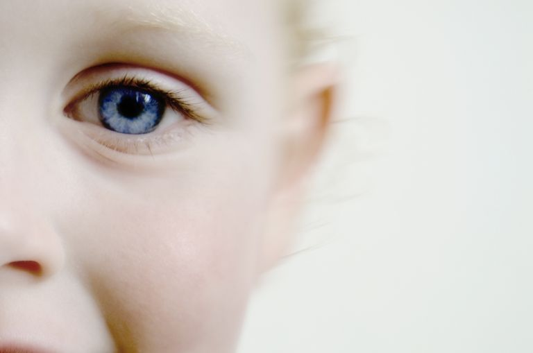 Boy, 3, eye close-up