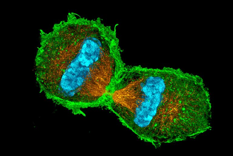 Dividing Cell in Mitosis
