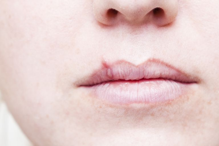 herpes cold sore on face