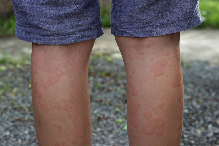 Skin allergies, legs women