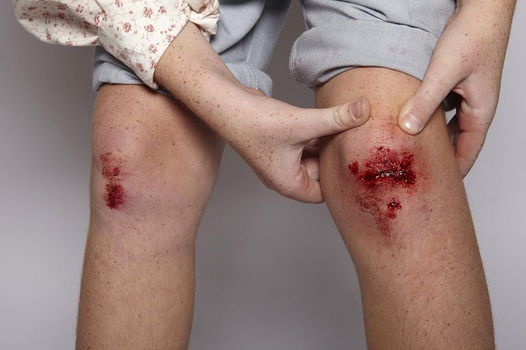 Child showing her grazed knee
