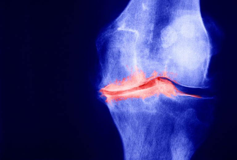 Joint space narrowing evident on knee x-ray