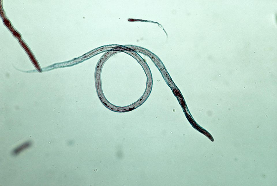 Roundworms (Toxocara canis) from a dog by Flukeman / Wikimedia Commons