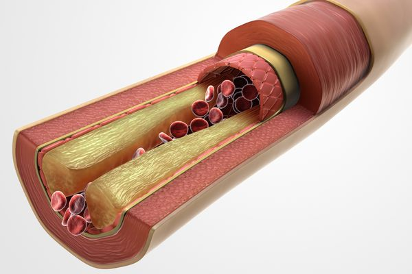 Triglycerides can cause Atherosclerosis.
