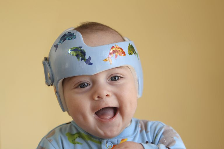 An infant wearing a helmet to treat his positional plagiocephaly.