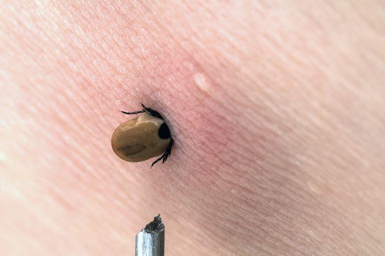 tick in human skin