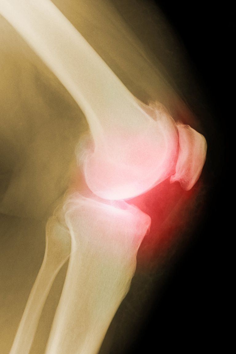 An X-ray showing an arthritic knee.