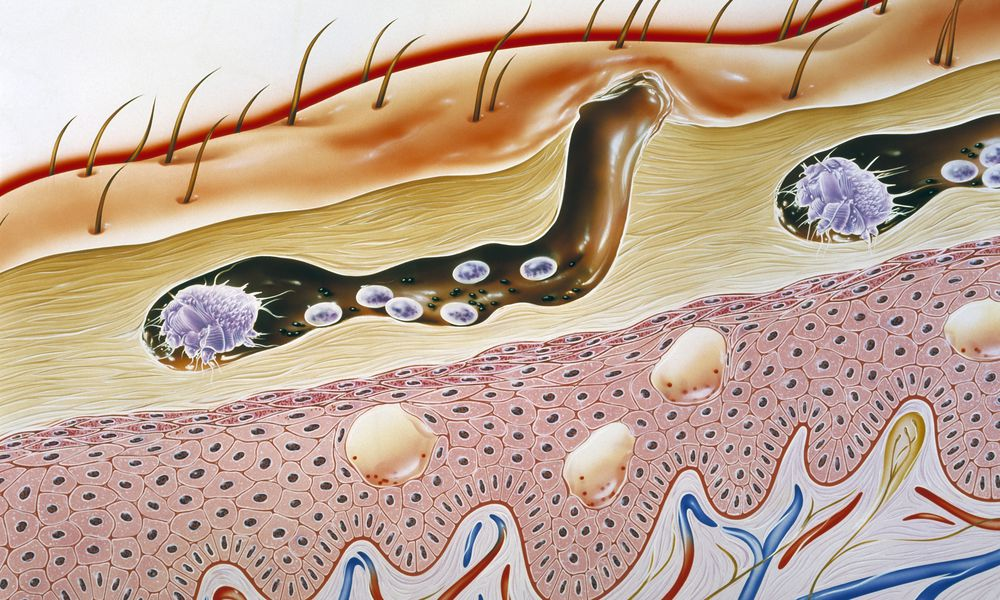 illustration of scabies mite burrowing through skin