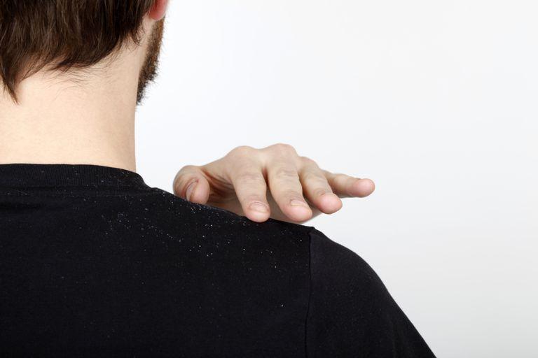 brushing dandruff off shoulder