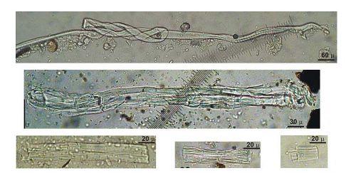 Wild flax fibers from Unit C, Dzudzuana Cave, Georgia