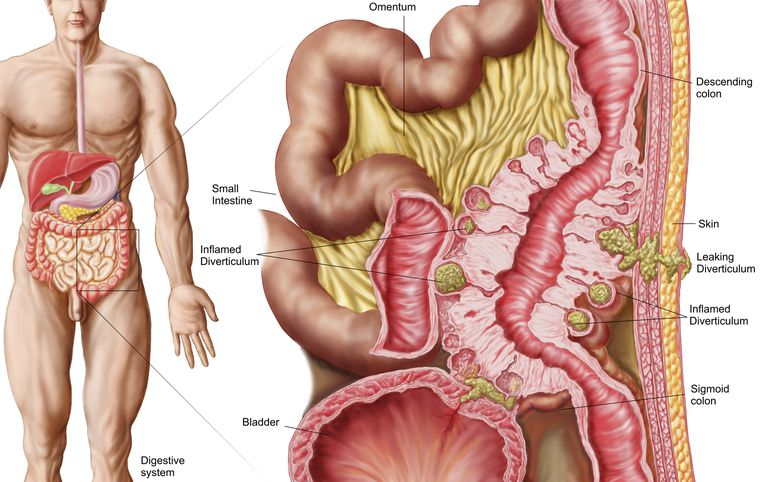 Illustration of diverticulosis in the colon.