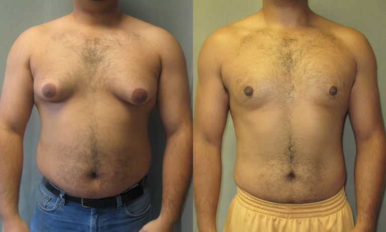 22 year old patient before and after gynecomastia surgery (frontal view). The excision of the gland and the liposuction were both done through one small incision only in the bottom of each areola(as opposed to around the entire areola).This resulted in a smaller areola with a tiny incision. This patient was featured on The Learning Channel