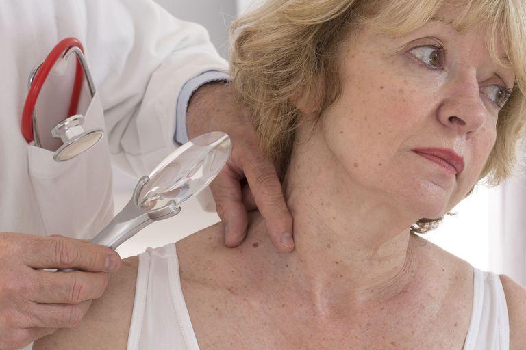 Dermatologist examining patients moles