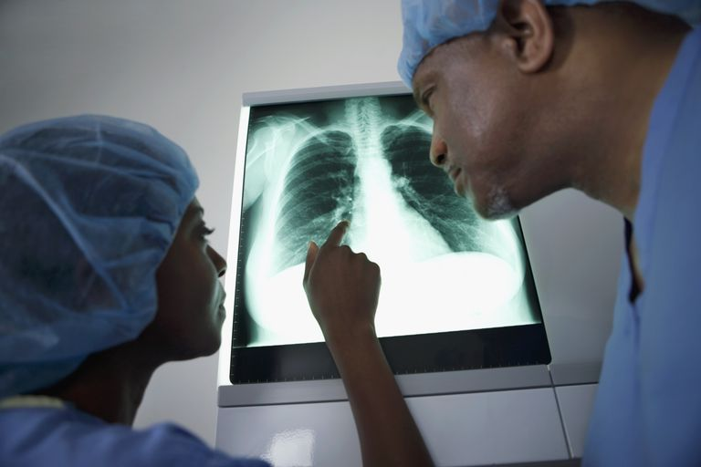 Doctors looking at xray of lungs