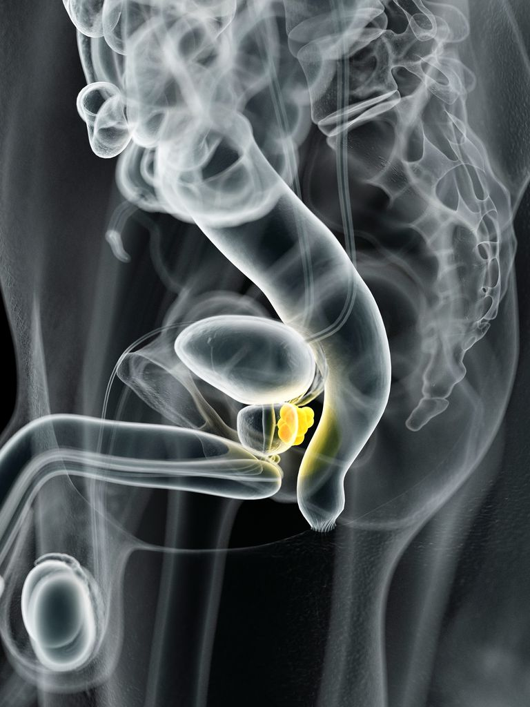 Human prostate cancer, illustration