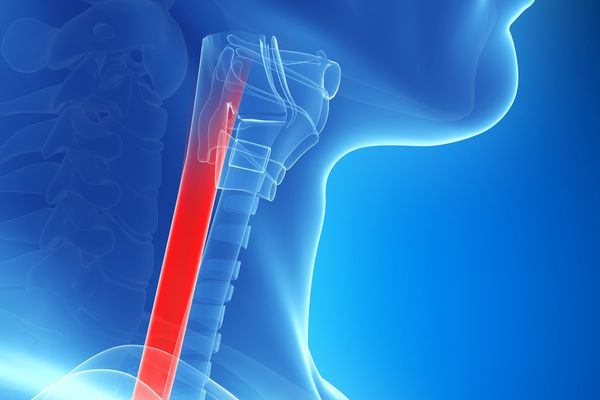 The trachea brings air to the lungs.
