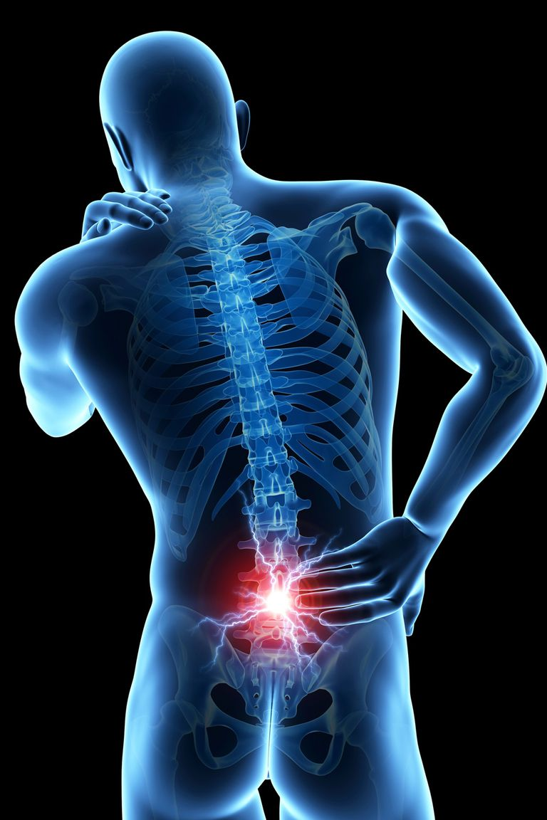 A graphic illustrating lower back pain.