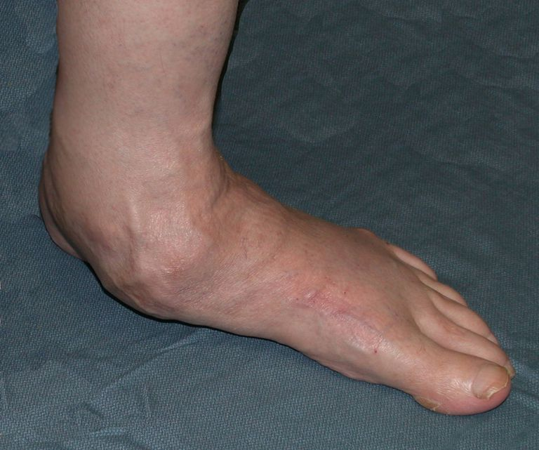 Solutions For Dealing With Flat Feet
