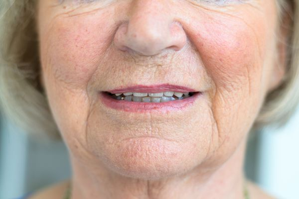Older woman with facial flush