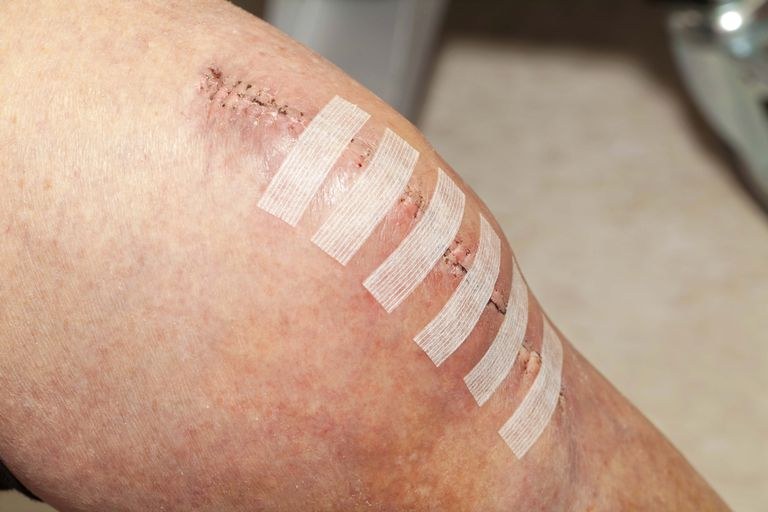 Knee replacement incision
