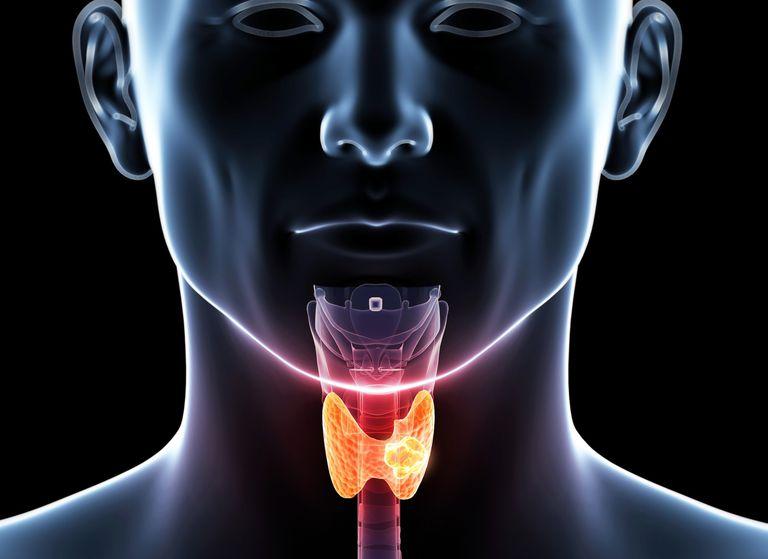 Human thyroid cancer, illustration