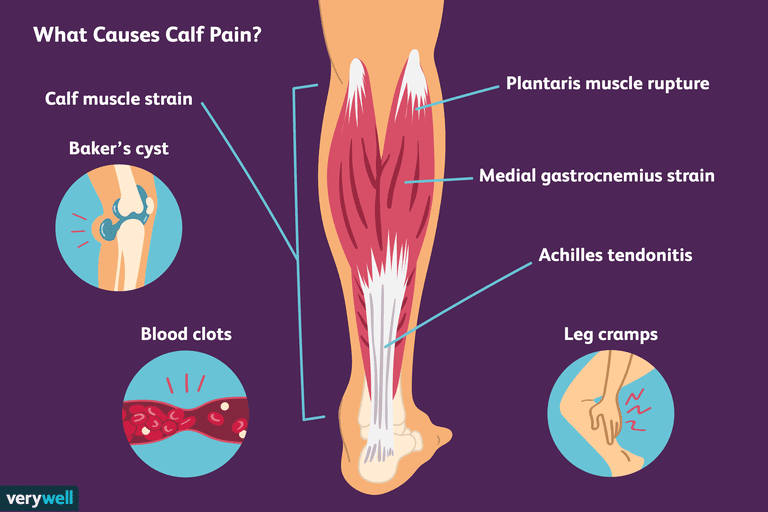 7 Common Causes Of Calf Pain And How To Treat Them