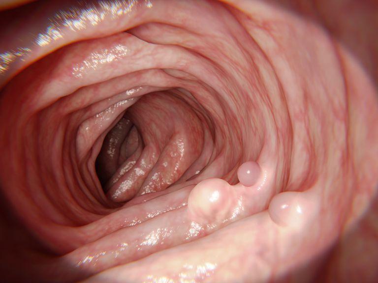 Intestinal polyps, illustration