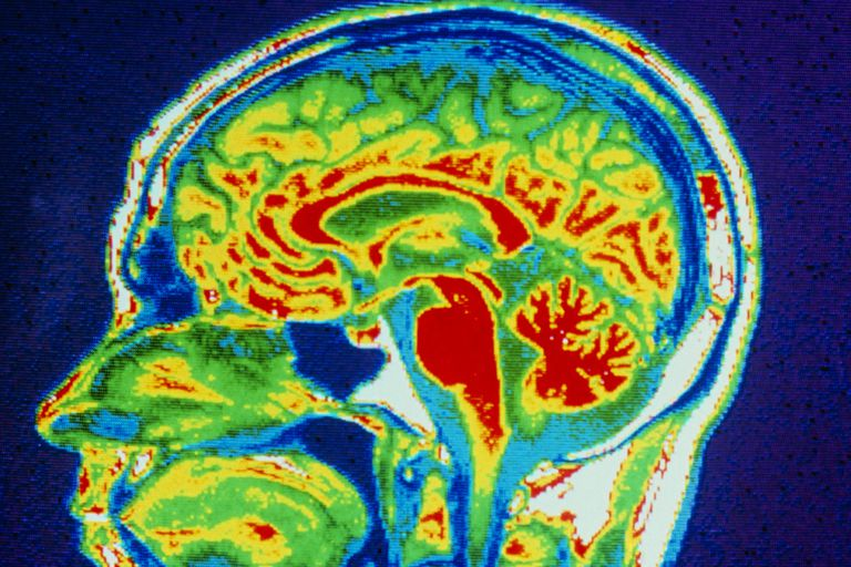 Seizures are rooted in the brain.
