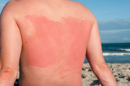 sunburned scuba diver