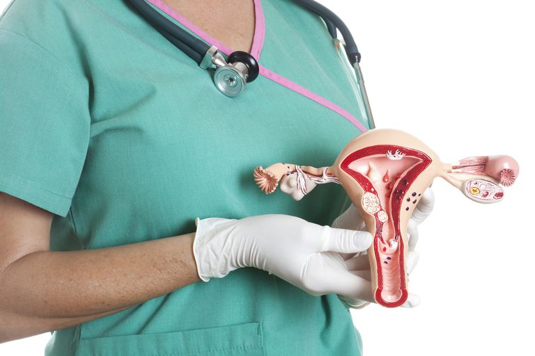 Nurse holding a model of a uterus