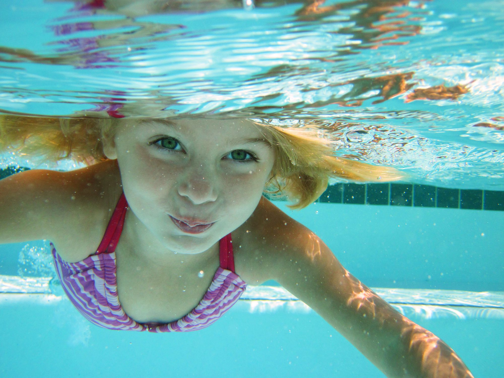 Causes Of Eye Irritation When Swimming