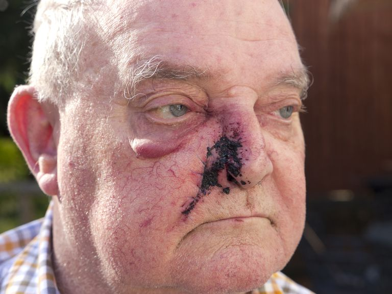 basal cell carcinoma cancel lesion on the nose