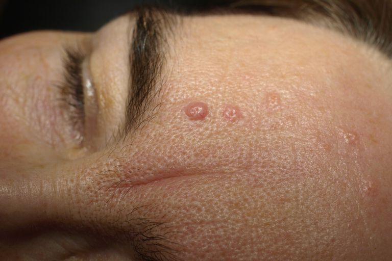 Seborrheic Keratosis on the face.