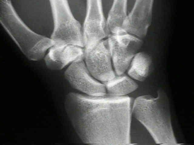 Broken wrist fracture