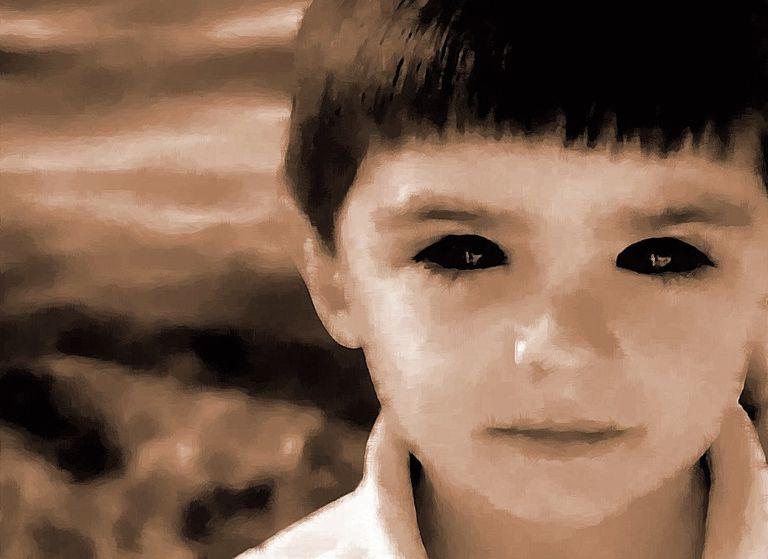 Black eyes