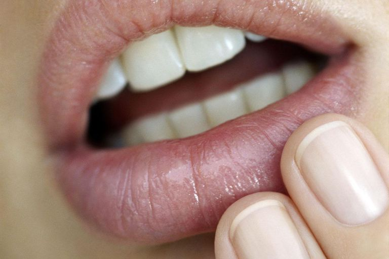 Young woman touching lips, close-up