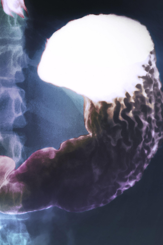 Barium Swallow And Small Bowel Follow Through