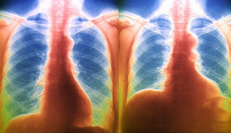 Breathing, X-ray