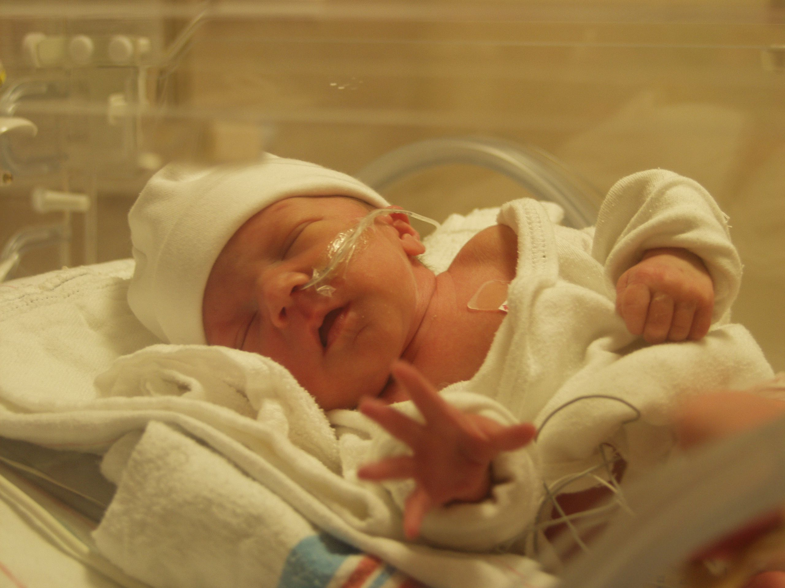 Фото детей которые были при рождении недоношенных