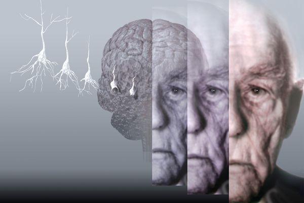 Brain Changes in Alzheimer's Can Affect Behaviors