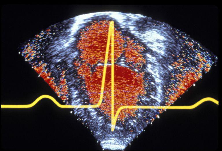 echocardiogram and ECG