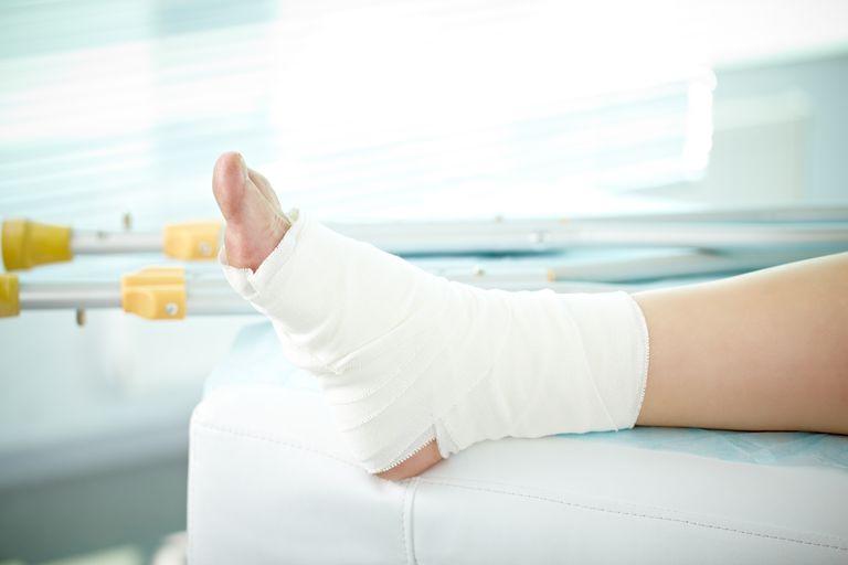 Sprain of a foot