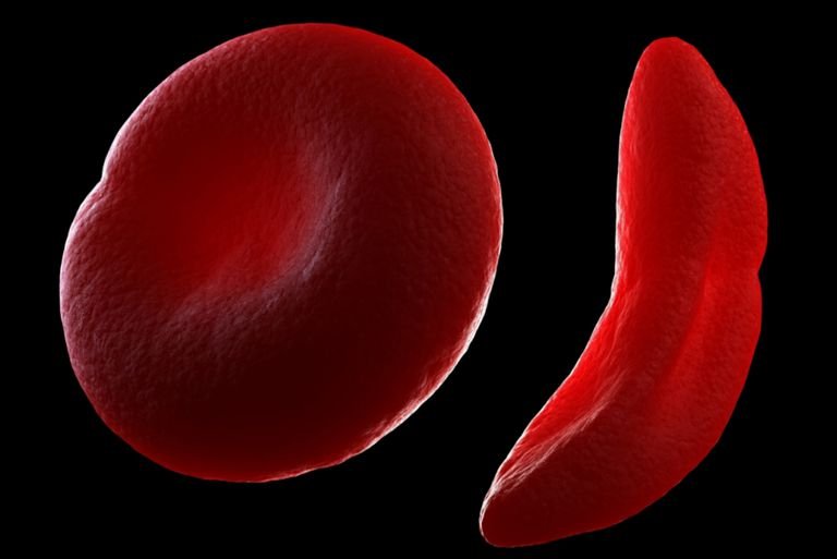 Anemia de células de Sickel