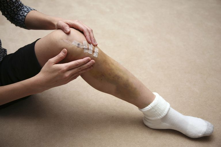 knee incision