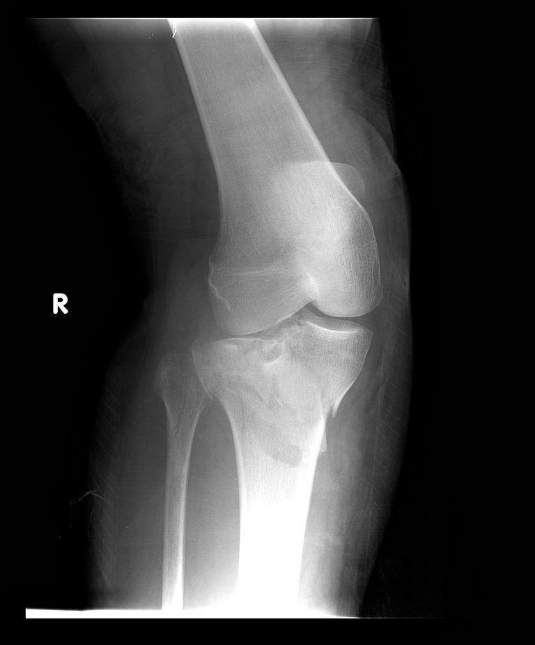 Tibial Plateau Fracture - Broken Top of Shin Bone